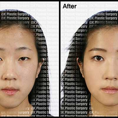 Find Forehead Contouring prices at BK Plastic Surgery